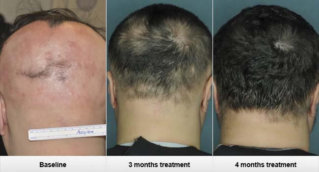 Il costo di operazione su capelli trapianta sulla testa