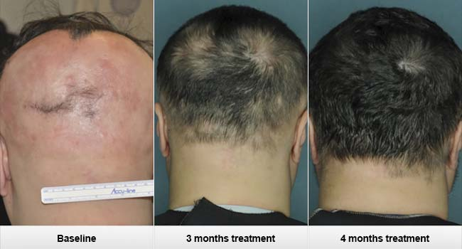 Cancer Drug Ruxolitinib Reverses Alopecia Areata Hair