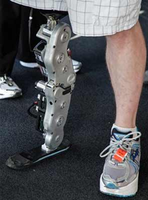 chicago_bionic_leg_103_floors_amputee_295.jpg
